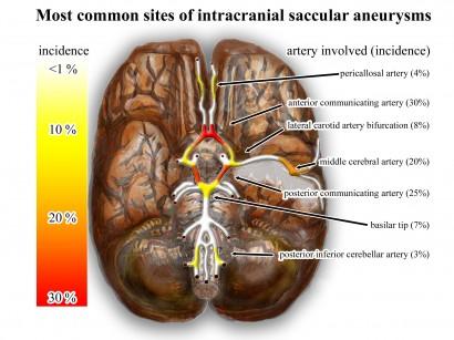Aneurismi Intracranici