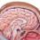 Craniofaringiomi