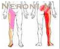 sciatica posteriore, radice L5-S1 (rosso) sciatica laterale, radice L4-L5 (giallo) cruralgia, radice L3-L4 (rosa)