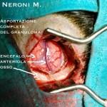 Granuloma Eosinofilo 4