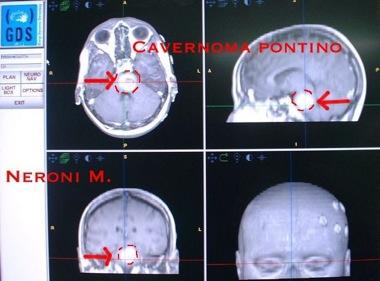 Cavernous angioma_1